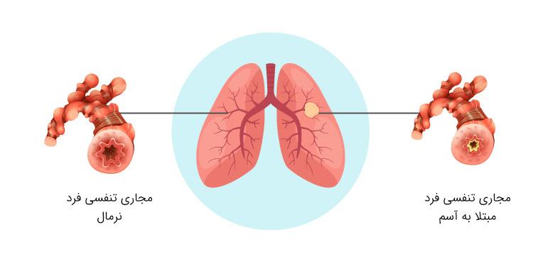 حمله آسم چیست؟