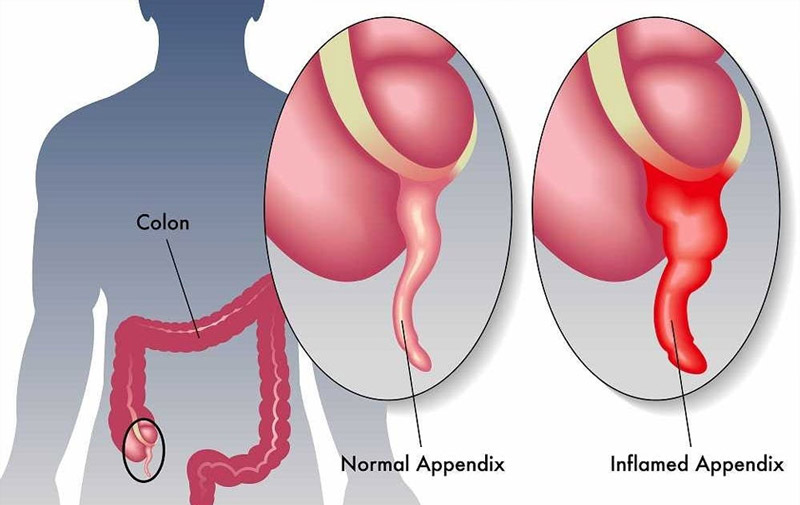 علائم عفونت آپاندیس یا آپاندیسیت