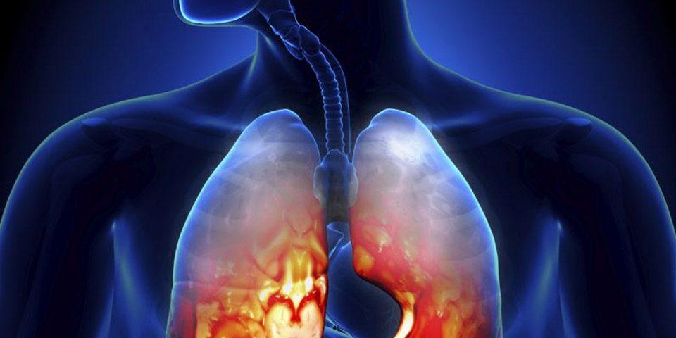 عفونت حاد دستگاه تنفسی