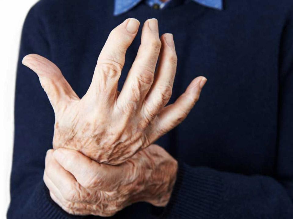 علائم، نشانه ها و راه های درمان آرتریت روماتوئید